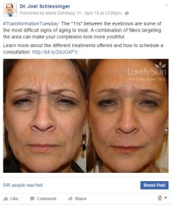 Dr. Joel Schlessinger - Before and After Injections