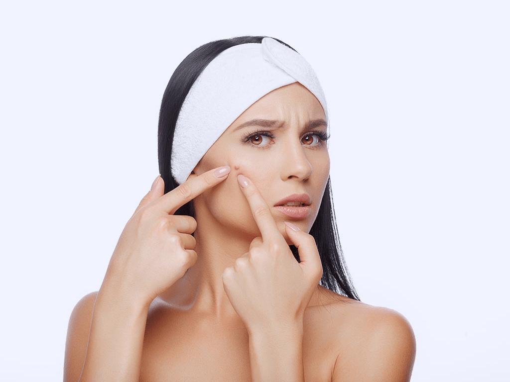 Kunci Mendapatkan Kulit Wajah Yang Sehat Tanpa Jerawat