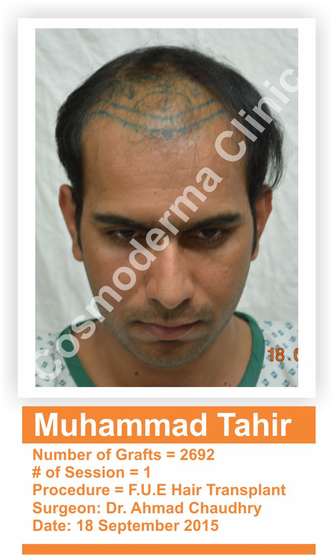 Fue 2692 Grafts Hair Transplant Cosmoderma Clinic Lahore