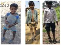 Socio-Political and Economic Aspects Of Fluorosis