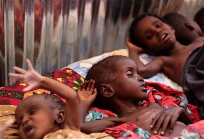 somalia-starvation