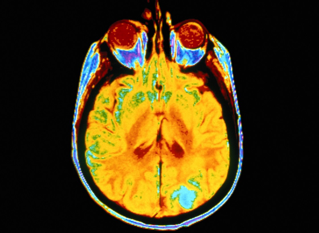 World Brain Tumor Day - This is an awareness day, held June 8 of each year.