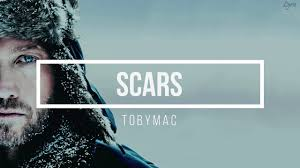 Scars by TobyMac - This Weeks Christian Music Monday is by TobyMac and his song Scars. This is a special feature because it is in memory of his son Truett Foster, who recently passed away. #Scars #TobyMac #TruettFoster