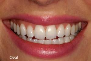 teeths courtenay dental health courtenay