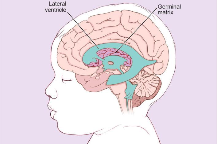 Brain infant