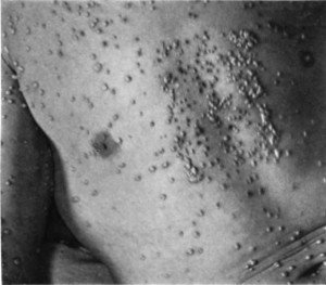 """An example of small pox, from book, """"The diagnosis of smallpox, """"by T.F. Ricketts, 1910"""