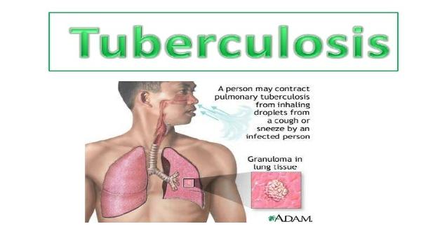 tuberculosis-diseasedocx-1-728