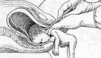 partial-birth-abortion
