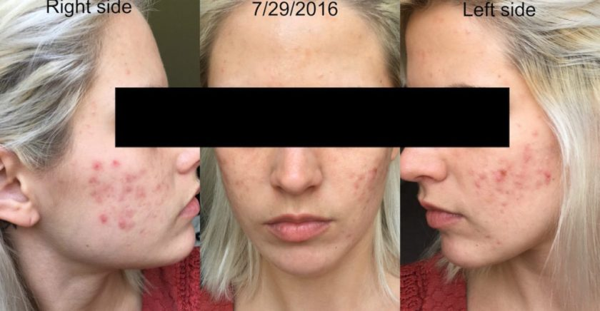 yoderm-12-5-weeks-after-starting-retin-a-0-08-and-aczone-regimen
