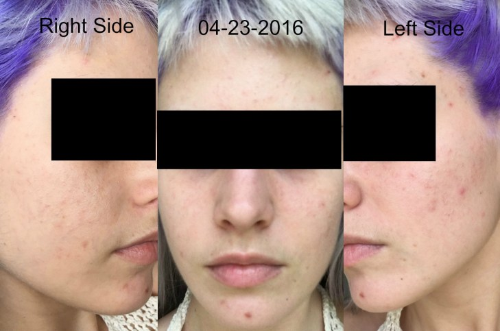Yoderm Review Disrupting Skincare With Online Dermatologist