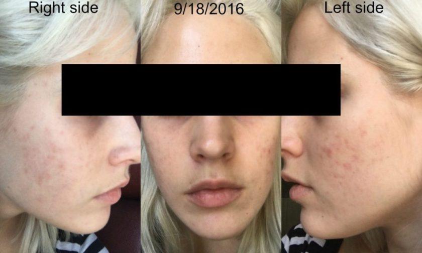 yoderm-20-weeks-after-starting-retin-a-0-08-and-aczone-regimen
