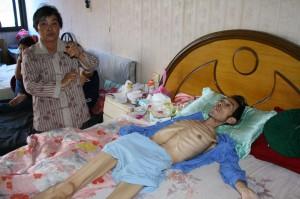 El señor Wang es una de las muchas víctimas de cáncer en China, vive en la ciudad Wuxi en la provincia de Jiangsu. Foto  Zhao Yan/Greenpeace