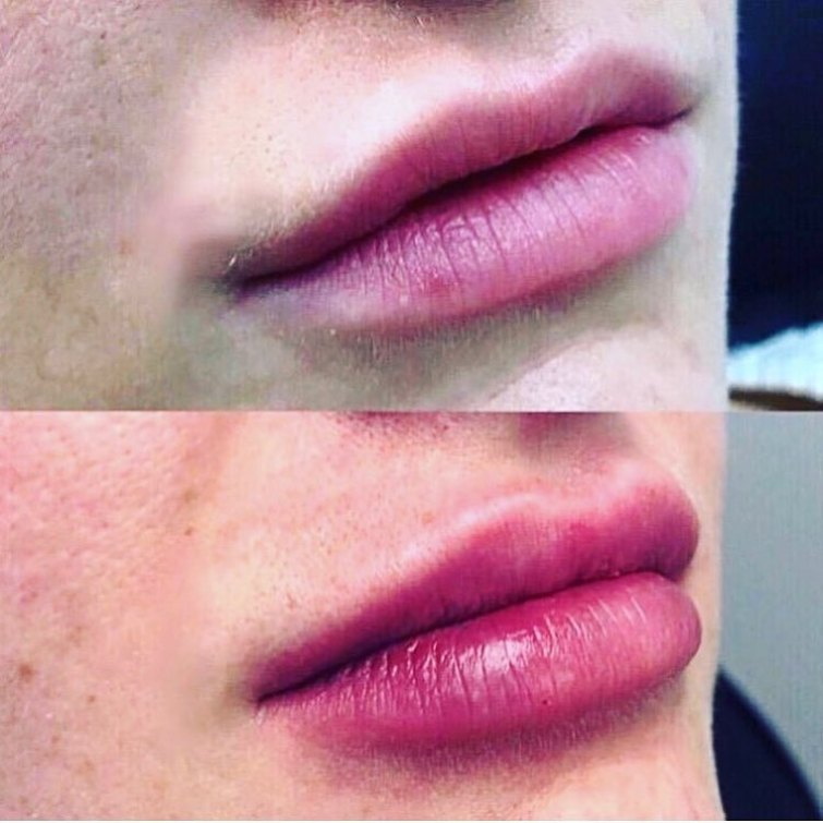 filler labbra torino 2