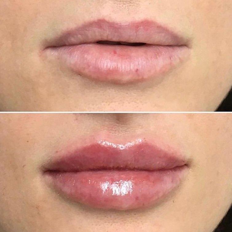 filler labbra torino 35
