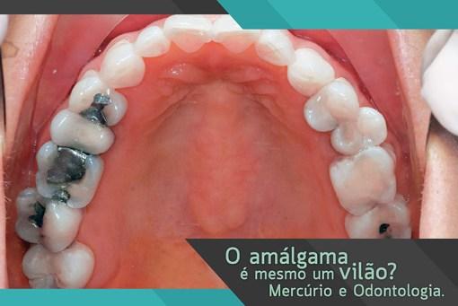 Mercúrio e Odontologia