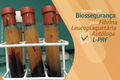 Fibrina Leucoplaquetária Autóloga L-PRF em Odontologia