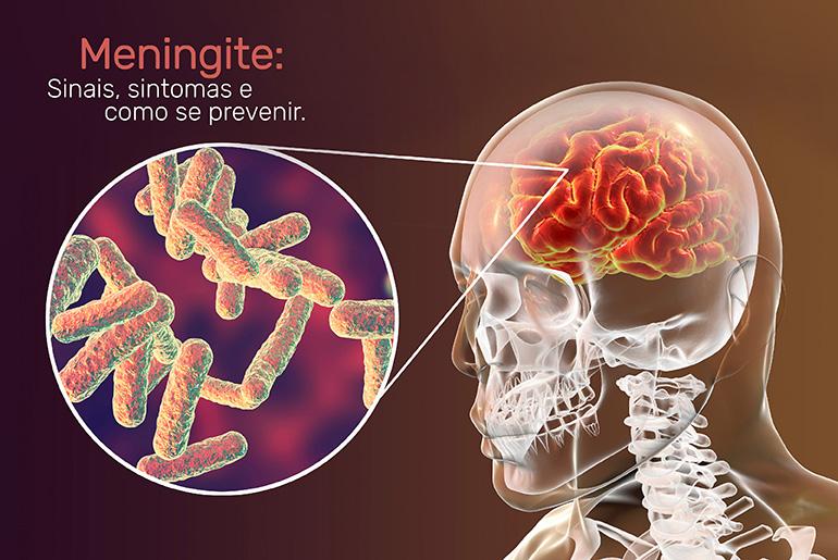 Meningite - Sinais, sintomas e como se prevenir