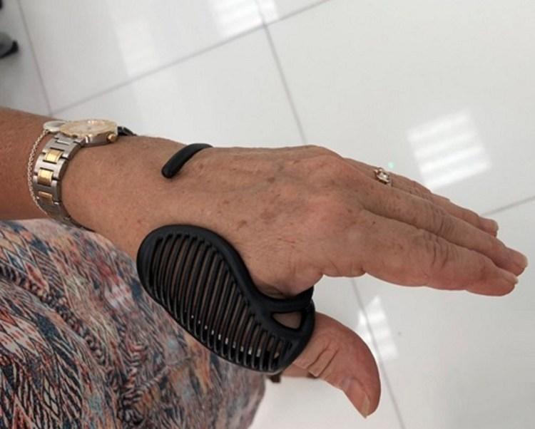 Jumbo & MOBILIS - 3D Printed Thumb Orthosis
