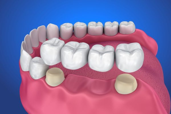 Crofton Dental Care - Bridges
