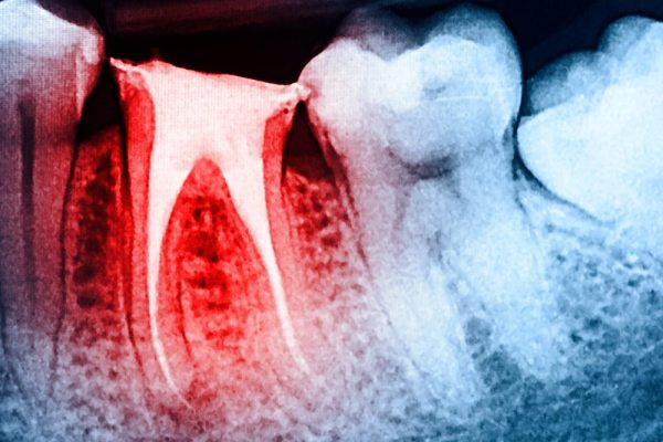 Crofton Dental Care Root Canal X Ray