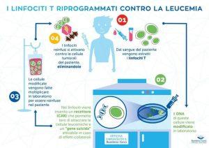 Bambino curato dalla leucemia con tecnica genica, è la prima volta in Italia