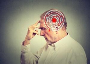 Alzheimer, scoperto meccanismo che blocca e attacca la memoria: il test di due ricercatori italiani