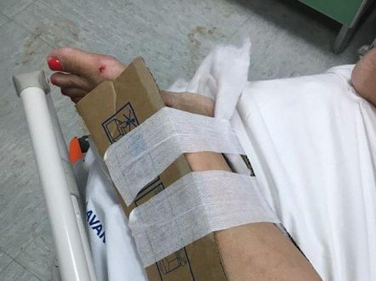 Reggio Calabria, in ospedale non ci sono più gessi e tutori: pazienti medicati col cartone