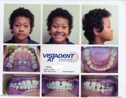 patient before photos - before braces