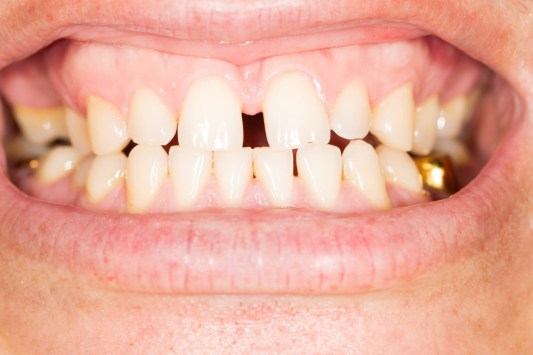 davie fl fixing gaps in teeth