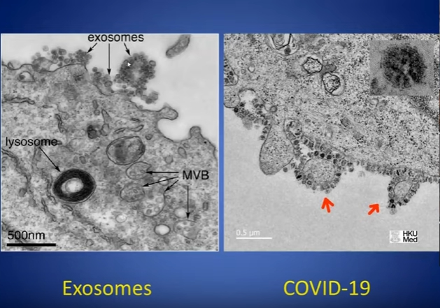 https://i2.wp.com/www.crowrising.com/images/stories/exosomes_covid19.jpg