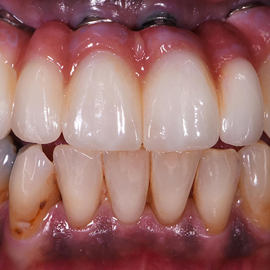 Implants Crystal Dental Design