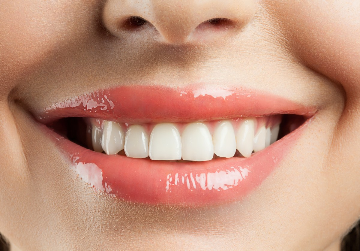 white teeth from oil pulling