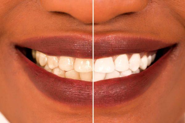 teeth-whitening-kits_4585777_edited