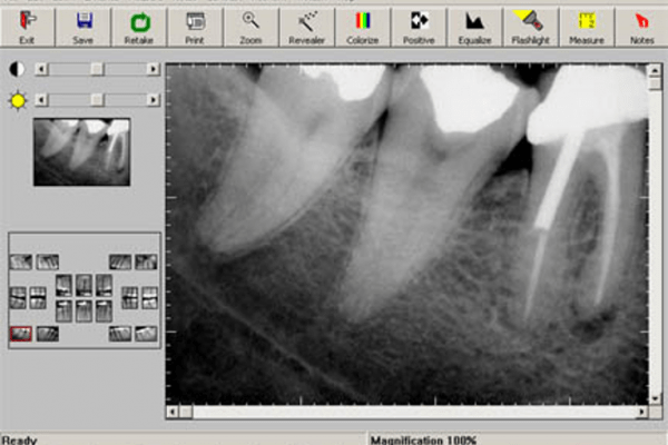 Computerized Digital Image of a Peri-apical x-ray. Note the very dark areas representing infection or blood vessels. The white are metal fillings and post/core root canal.