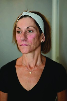 Cathy after her 'liquid facelift' at Pure Skin in Southington, Conn.