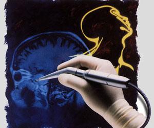 Neurocirugía