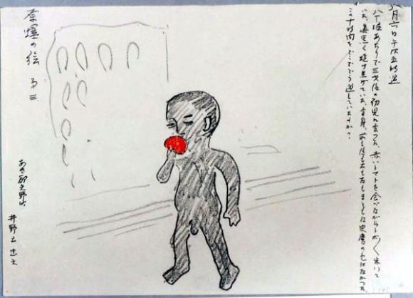 Inodue Tadao-35-Un niño de 3 años con el cuerpo quemado trata de comer un tomate