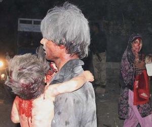 Un niño herido en Afganistán.