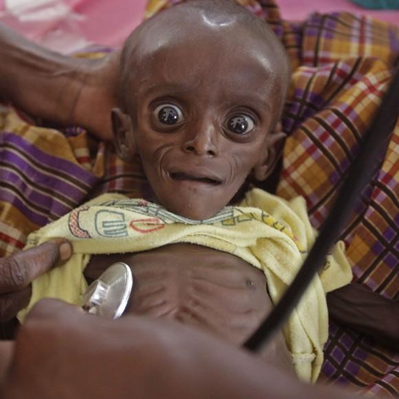 Mihag Gedi Farah, un niño de siete meses de edad, está en manos de su madre en un hospital de campaña del Comité Internacional de Rescate en la ciudad de Dadaab, en Kenia. (AP / Schalk van Zuydam)