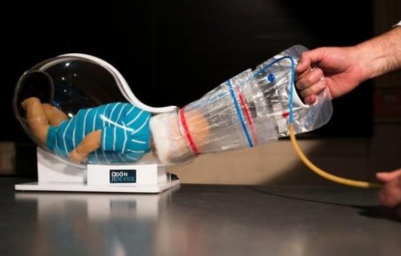 Con el dispositivo Odón, un auxiliar mete una bolsa de plástico dentro de la manga de plástico lubricada alrededor de la cabeza, la infla para sostener la cabeza y jala la bolsa hasta que el bebé salga. Foto: The New York Times