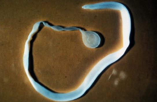 La tenia más larga sacada a una persona. Los huevos de tenia entran en el intestino humano, por lo general, a través del agua contaminada o de los alimentos. También se encuentran en la arena o la tierra. La longitud de las tenias normalmente alcanza unos 5 metros. Sin embargo, el 5 de septiembre de 1991 del intestino de Sally Mae Wallace sacaron una solitaria de 11 metros de longitud. La extracción tuvo que efectuarse por la boca.