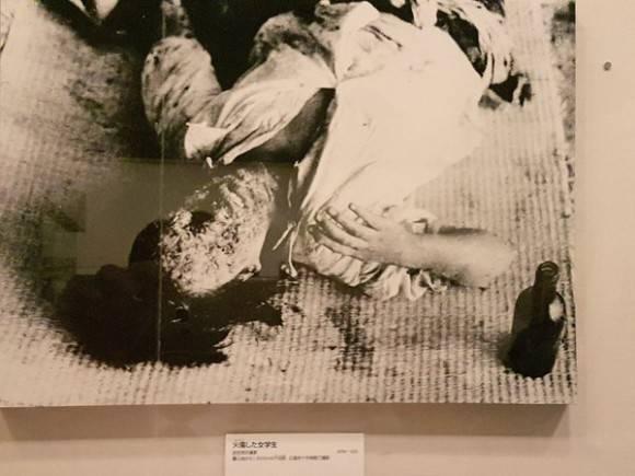 """""""Hecho criminal, innecesario  y moralmente  injustificable"""". Imagen de una víctima que se conserva en el Museo de la Bomba Atómica. Foto: RogelioSierraD/ Twitter"""