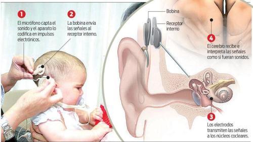 implante coclear para niños