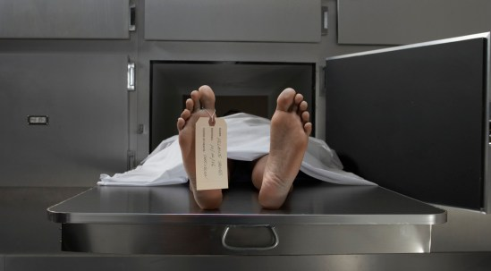Cadaver on autopsy table, label tied to toe