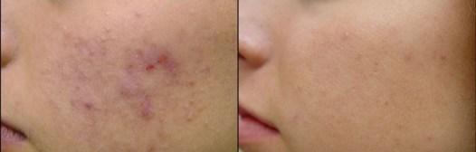 Como eliminar el acné con mascarillas caseras