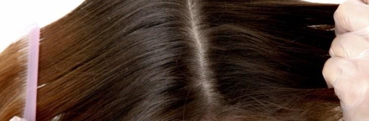 cabello-caspa