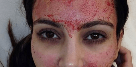 Kim K's coveted vampire facial