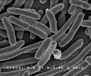 Bactéria E. coli vista no microscópio eletrônico.