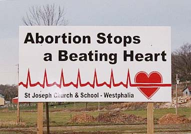 0823_-_Abortion_Stops_a_Beating_Heart