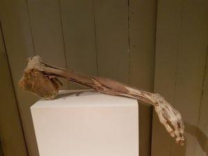 Chirurg Frank IJpma bestudeerde in De Waag de anatomie van een arm